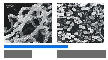 бактерии после ультразвука при использовании megasonex
